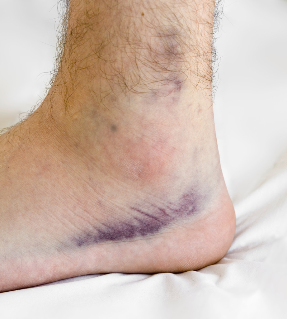 Rehab after an Ankle Sprain -