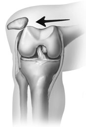 patellar dislocation Rehabilitation After Patellar Dislocations