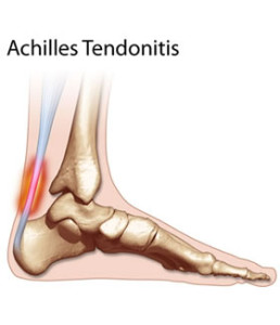 achilles tendonitis 258x300 Physical Therapy for Achilles Tendinitis