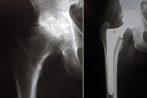 THR 300x201 Hip Replacement