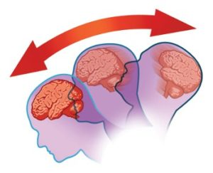 concussion 300x243 Recognizing and Treating Concussions