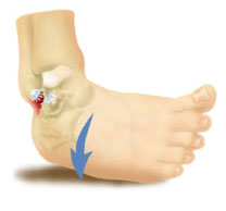 "ankle sprain Ankle Sprain ""Home Remedy"""