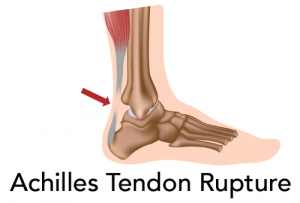 achilles 300x203 5 Ways to Reduce Achilles Tendon Rupture