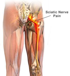 Sciatic nerve, sciatica, gluteal pain