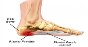 fasciitis 300x160 Heel Pain on the Inside of the Foot?