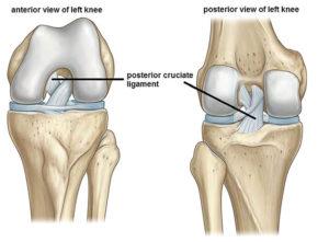 posteior cruciate ligament 300x221 Spencer Ware Injury Rehabilitation