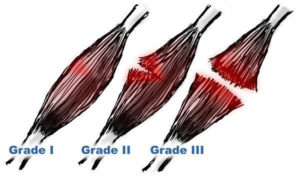 pulled muscle 300x178 How to Treat a Pulled Muscle