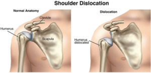 ShoulderDislocation SM 300x146 Rehab after a Separated Shoulder