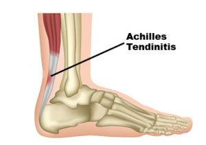 achilles tendonitis1 300x211 Exercises for Achilles Tendinitis